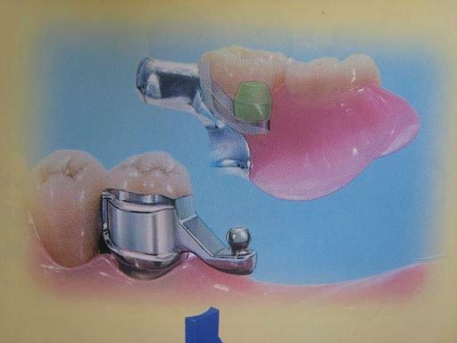 Precision Attachment Denture in Hyderabad