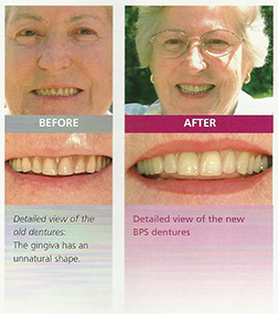 BPS Dentures in Hyderabad