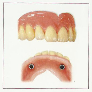 Combination Dentures