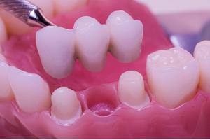 dental_bridge_proper_design