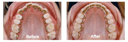 Lingual Braces Procedure