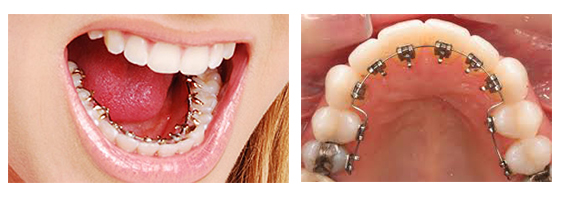 Lingual Braces Specialist Hyderabad