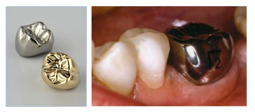Temporary & Permanent Crown Dental Services