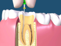 Pulpectomy Dental Treatment Hyderabad