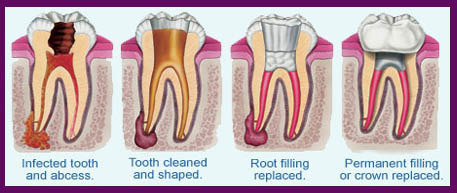 Root Canal Treatment Gachibowli Hyderabad