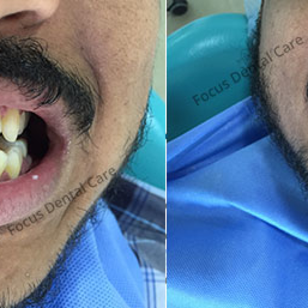 cosmetic-treatment-of-upper-front-teeth