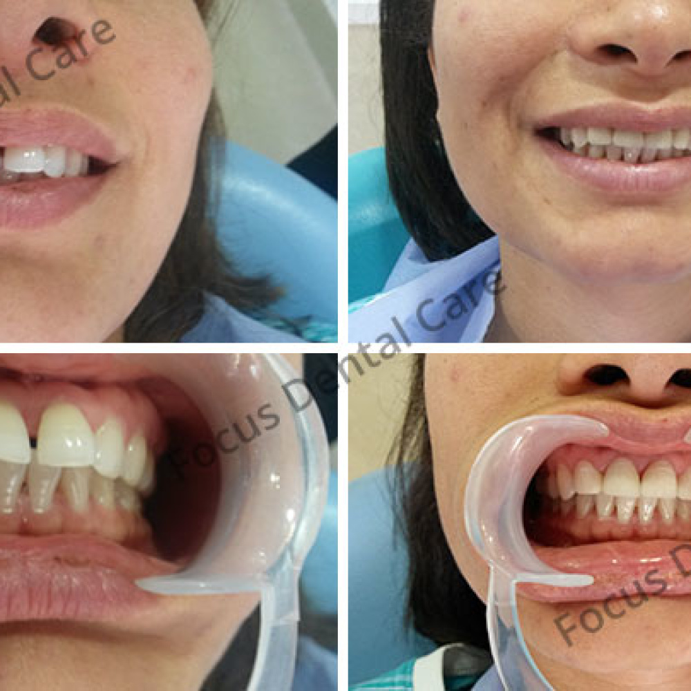 focus-dental-care-img-1