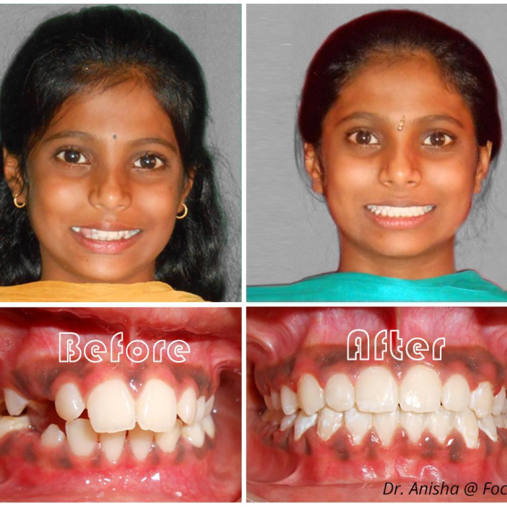 focus-dental-care-ortho