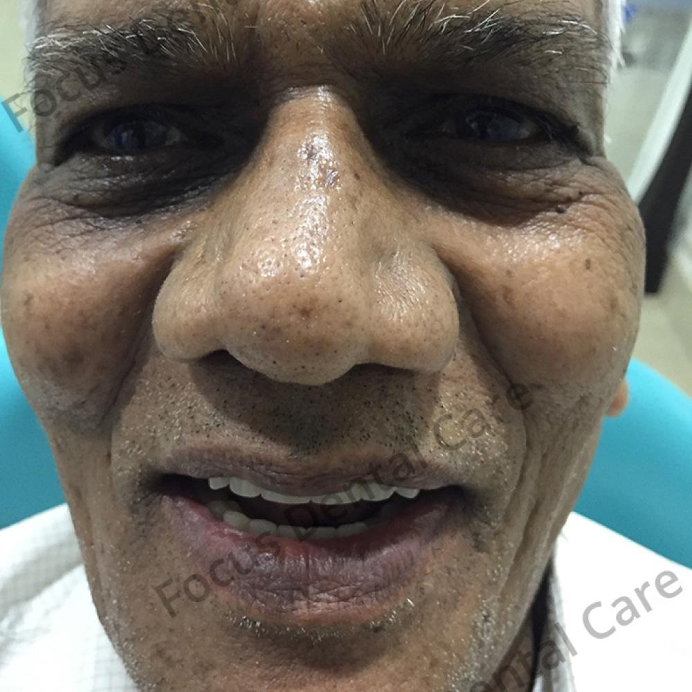 lingaiah-patient-smile-img-19