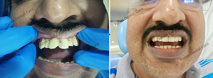 Hollywood Smile In Hyderabad Bridal Smile Makeover Fdc