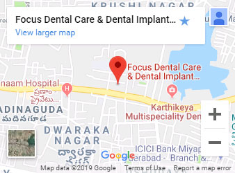 Best Dental Implants Hospital in Hyderabad | Top Dental