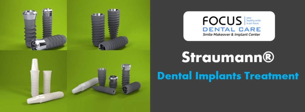 Straumann 174 Dental Implant Treatment In Hyderabad India