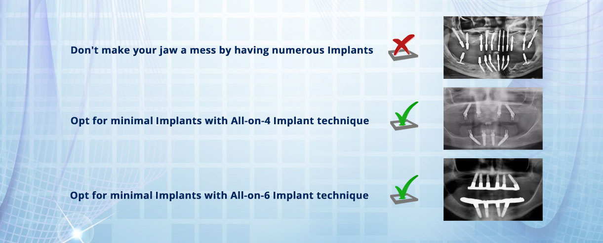 Best Dental Implant Clinic In Hyderabad India Cost