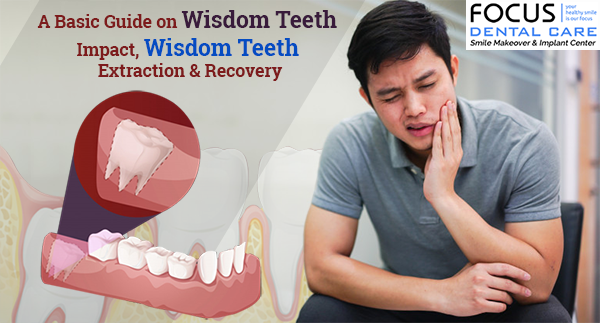 Treatment For Wisdom Teeth Impact Wisdom Teeth Extraction Recovery Best Dental Implants Clinic In Hyderabad India Top Dental Clinic In Hyderabad India
